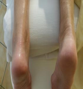 Schmerzlinderene Perlbehandlung
